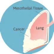 mesothelioma overview  malignant mesothelioma cancer
