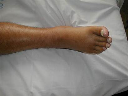 Foot Venous Insufficiency Edema Right Leg Stasis