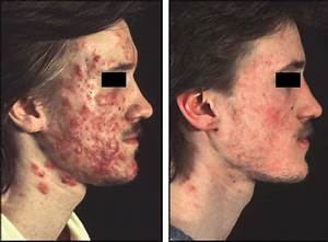 Acne conglobata in an 18-year-old male patient before ...
