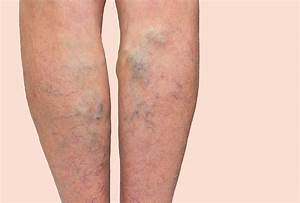 5 Home Remedies for Varicose Veins: What You Can Do Now ...