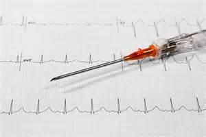 Right Heart Catheterization