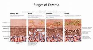 What Is Skin Eczema