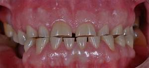What is the difference between dental attrition ...