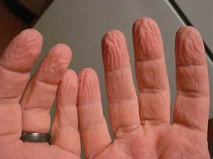 How finger wrinkles help us handle slippery stuff