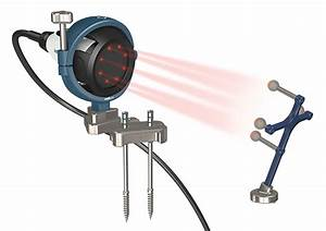 Ortho startup believes optical navigation tool can provide ...
