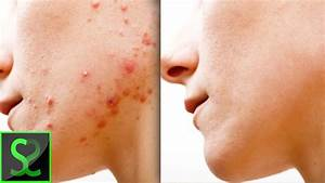 How To Remove Acne    Pimples In Photoshop
