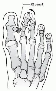 Fractures Of The Midfoot And Forefoot