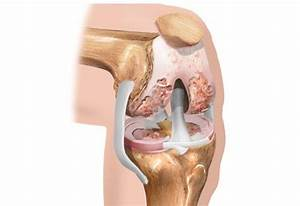 Санатории для лечения артроза локтевого сустава