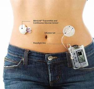 Insulin Pumps  U0026 39 Better Than Injections U0026 39  For Type 2 Diabetes