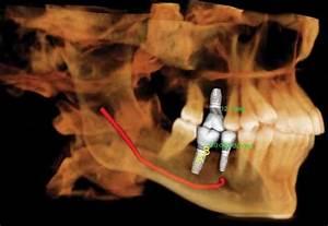 Dental Implants At Austin Artistic