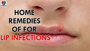 Home Remedies For Of Lip Infections - Health Sutra