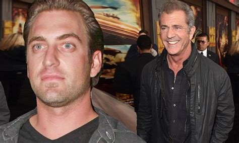 Mel Gibson's son Christian suffers severe burn injury