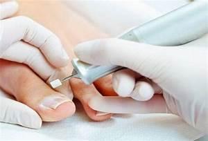 Пантовигар при грибке ногтей