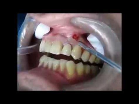 incision  drainage dun abces dentaire ames sensibles