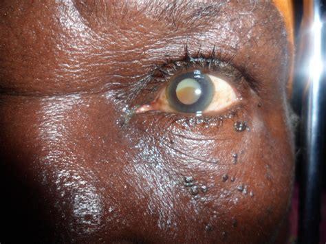 Krankheitsbild Grauer Star (Katarakt)  Augenhilfe Afrika