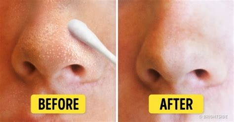8 ways to get rid of blackheads and whiteheads fast