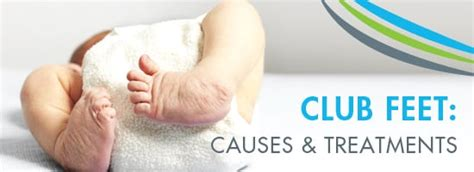 Clubfoot, unlike many other prenatal conditions, is clearly visible upon the birth of the baby. Club Feet: Causes and Treatments   Top O.C Surgery Center ...