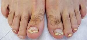 Psoriasi delle unghie : come