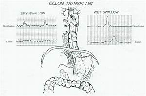 Can A Colonic Transplant Take An Active Part In Esophageal Transit