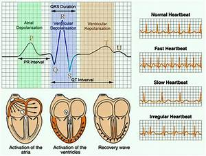 Electrocardiogram Test  Ecg    Procedure Types And Medical