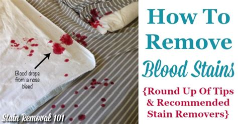 Removing Blood Stains From Upholstery by How To Remove Blood Stains Up Of Tips And Stain