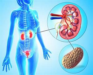 How To Prevent Kidney Stones As Hospital Cases Soar