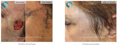mohs surgery nyc melanoma  skin cancer patients ron