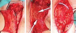 Example Of Sartorius Flap Coverage Of An Exposed Groin