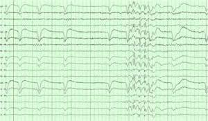 EEG Artifacts