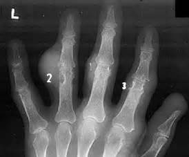 ray of a hand with visible swellings around the affected joints  Rheumatoid Arthritis Acute gouty arthritis