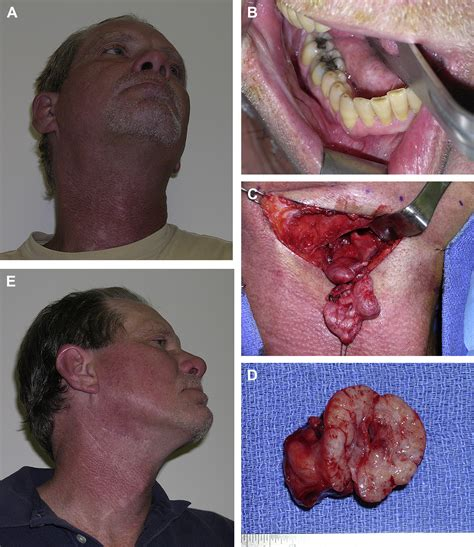Diagnosis And Management Of Salivary Gland Infections