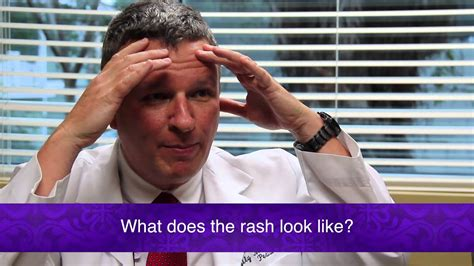 Measles What Does The Typical Rash Look Like Youtube