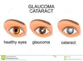 healthy-eyes-glaucoma-cataracts-illustration-eye-cataract-67173252.jpg  Glaucoma Eyes and Vision