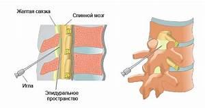 Сильные боли в спине от остеохондроза что делать