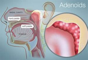 Adenoids  Human Anatomy   Picture  Function  Location   U0026 More