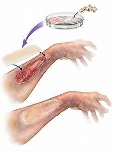 Advance Technologies Created By Human  Tissue Regeneration