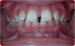 Common Orthodontic Problems: Clinical and Radiographic ...