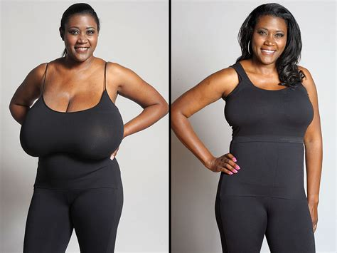 foto de Woman Whose Bra Size Was 36N Gets a Life Changing Breast