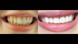 How to get INSTANT STRAIGHT teeth without braces, Veneers ...