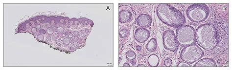 Multiple Eruptive Syringomas on the Penis | MDedge Dermatology