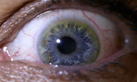 sclera markings holistic eye