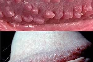 Clinical Quiz: Penile papules | Chemist+Druggist