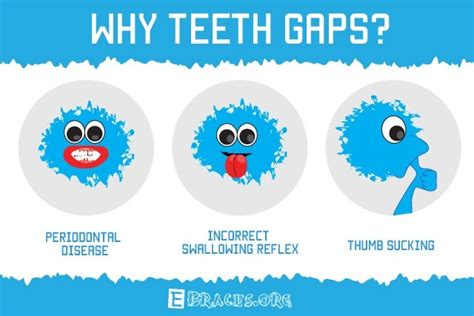 how to fix gap between how to fix gaps in teeth these 7 best non ways