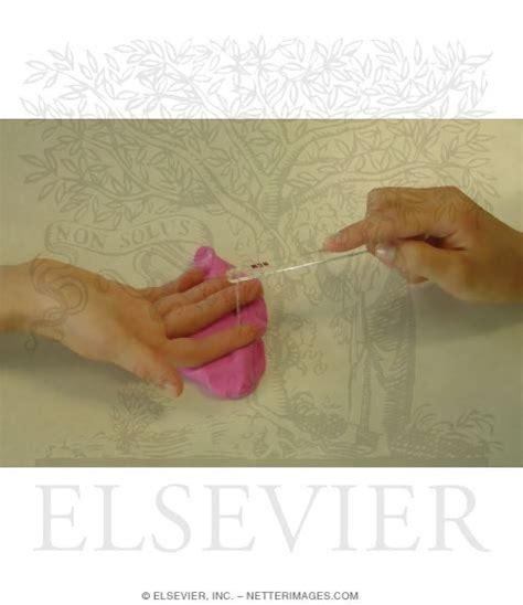 Carpal Tunnel Syndrome Semmesweinstein Monofilament Testing. Underwater Mortgage Refinance. Marshfield Dental Clinic Wildcard Ssl Godaddy. Independent Financial Advisor Firms. Free Consultation Personal Injury Lawyers. How To Become A Mortgage Broker In Ny. Peanut Butter And Jelly Pizza. American Express Credit Card For Students. Breast Implants San Diego Ca
