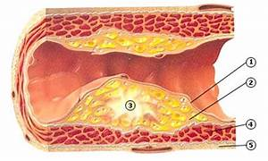 symptomen verstopte bloedvaten in benen