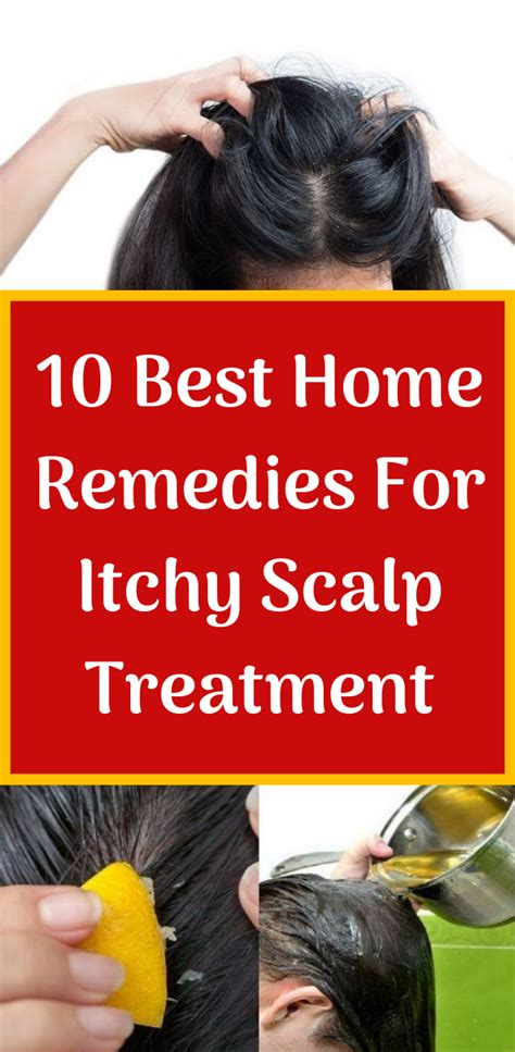 best medicine for itch 10 best home remedies for itchy scalp treatment herbal