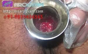 piles external hemorrhoids treatment - Piles and Fistula ...