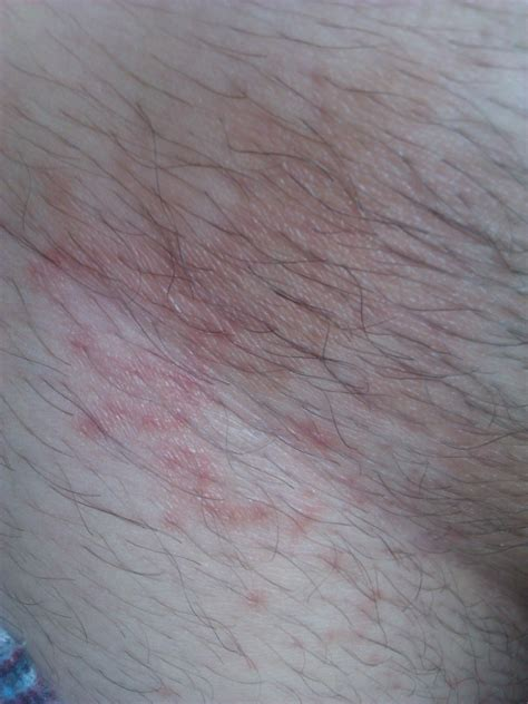 Groin Rash Pictures Sex Movies Pron