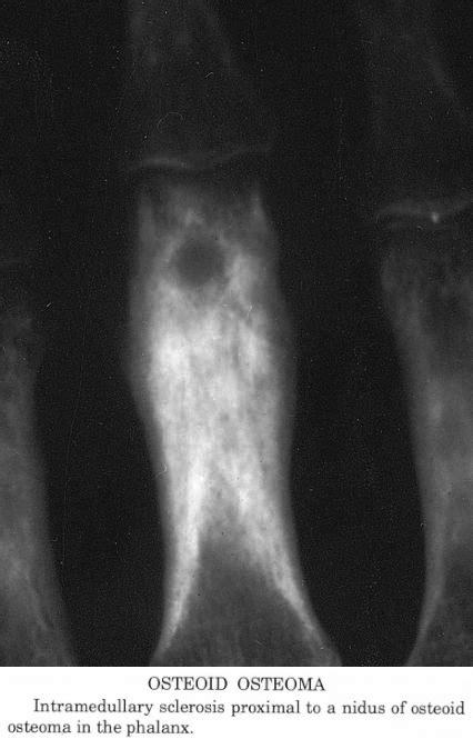 pathology outlines osteoid osteoma