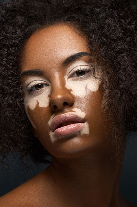 vitiligo   art institutes portfolios